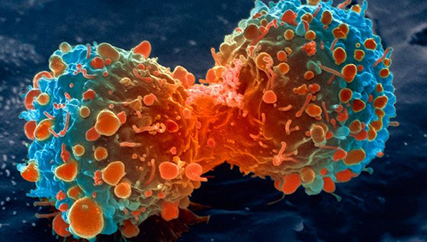 lung-cancer-cell-dividing-article.__v600248237